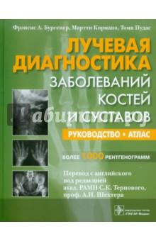 Лучевая диагностика заболевания костей и суставов лекарство от суставной боли терафлекс