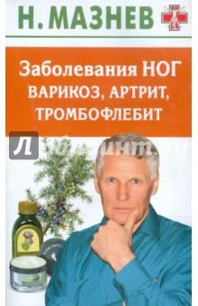 Заболевания ног: варикоз, артрит, тромбофлебит - Николай Мазнев