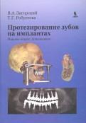 Загорский, Робустова: Протезирование зубов на имплантатах