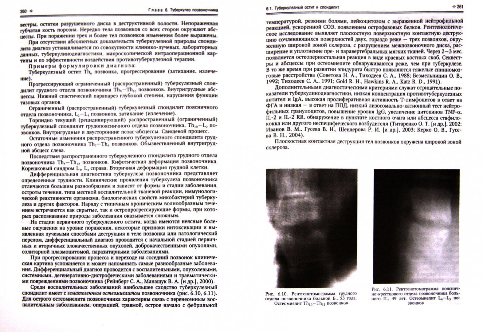 Иллюстрация 1 из 5 для Внелёгочный туберкулёз - Баринов, Мальченко | Лабиринт - книги. Источник: Лабиринт