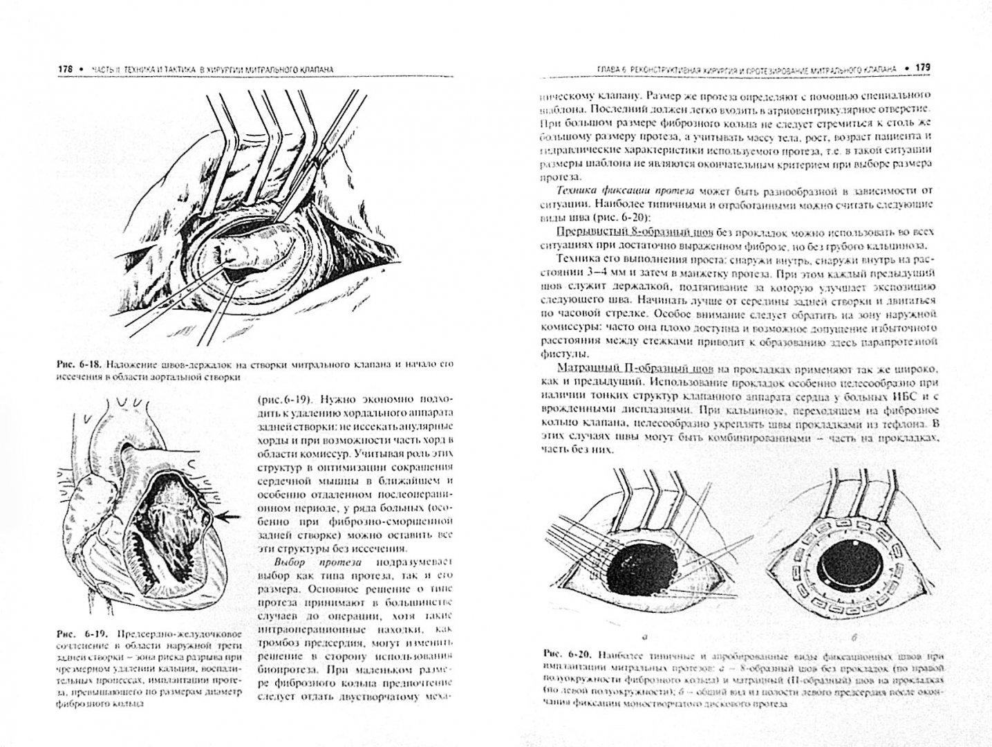 Иллюстрация 1 из 5 для Болезни митрального клапана. Функция, диагностика, лечение - Дземешкевич, Стивенсон, Аллен   Лабиринт - книги. Источник: Лабиринт