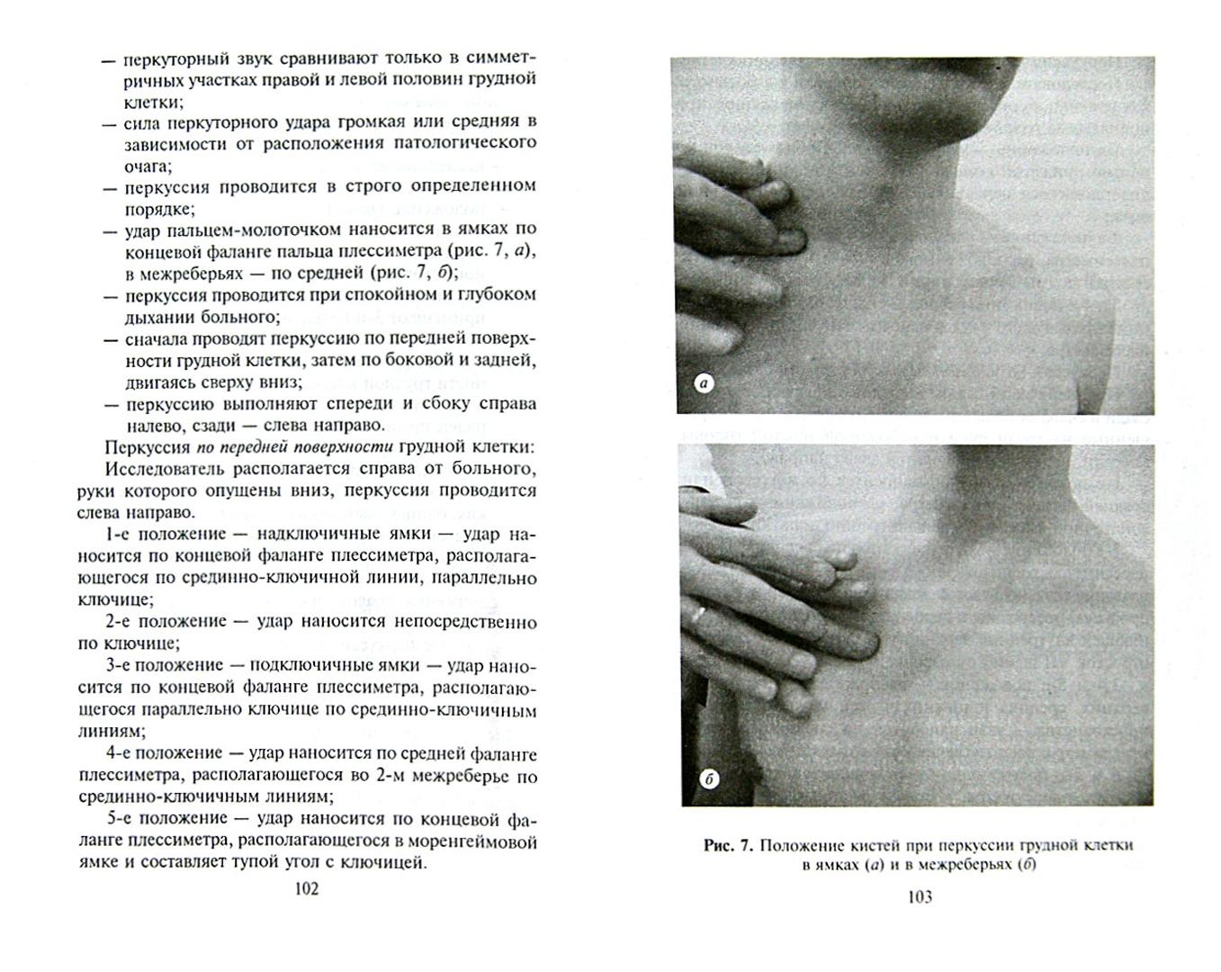 Иллюстрация 1 из 26 для Пропедевтика внутренних болезней. Методы исследования пациента - Щукин, Дьячков, Рябов | Лабиринт - книги. Источник: Лабиринт