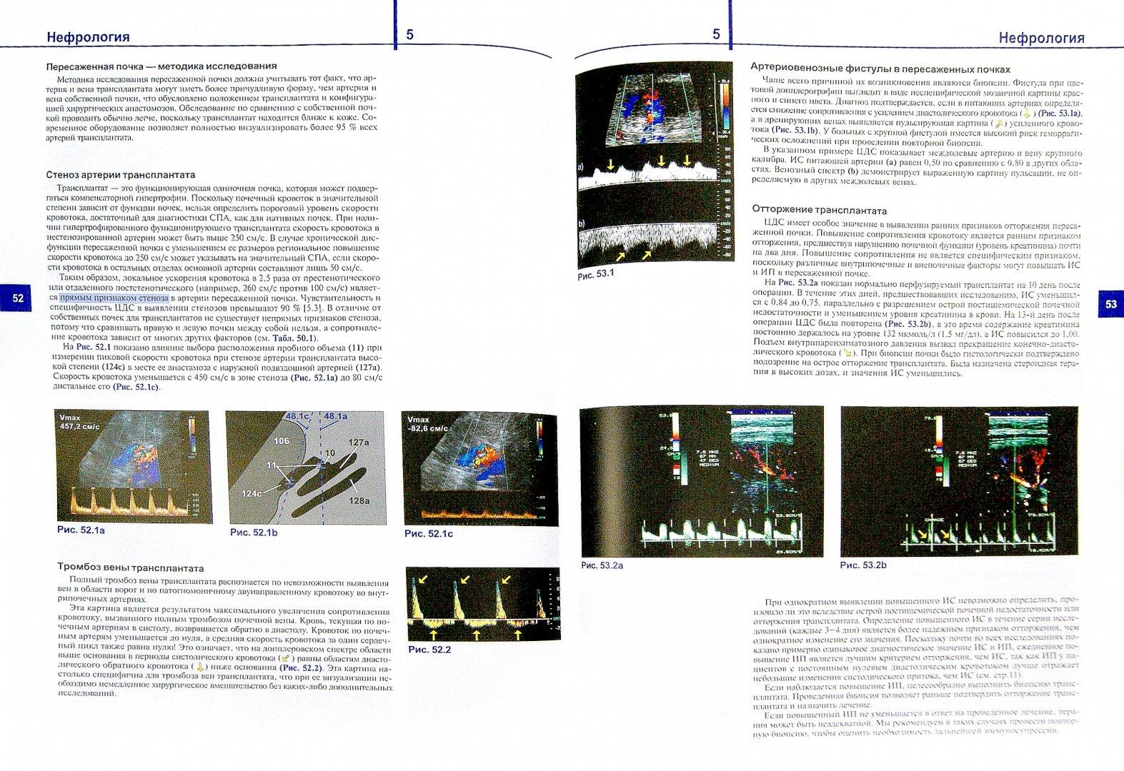 Иллюстрация 1 из 45 для Цветовая дуплексная сонография. Практическое руководство - Матиас Хофер   Лабиринт - книги. Источник: Лабиринт