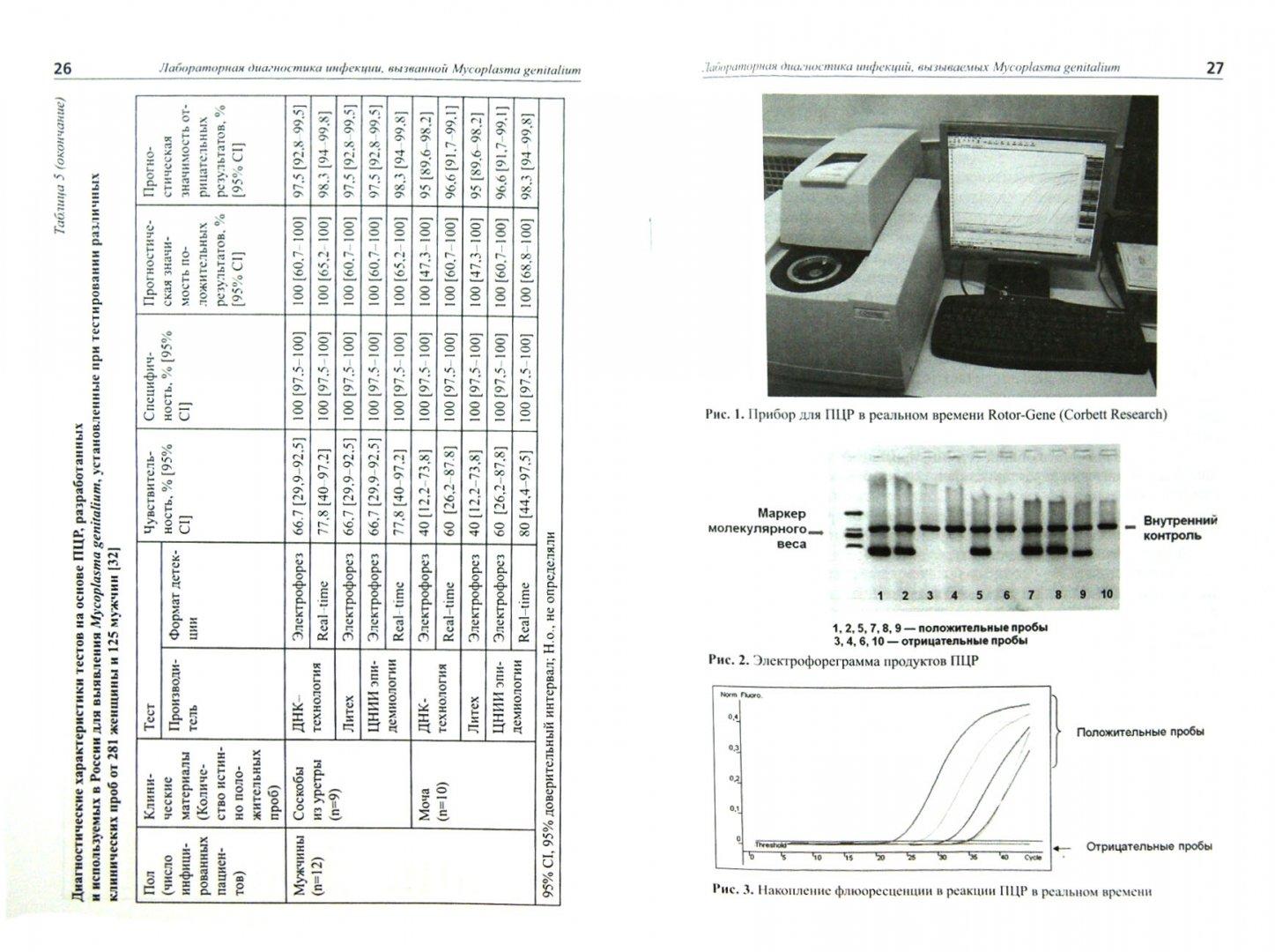 Иллюстрация 1 из 5 для Лабораторная диагностика инфекции, вызванной Mycoplasma genitalium. Методические рекомендации - Савичева, Шипицына, Золотоверхая | Лабиринт - книги. Источник: Лабиринт