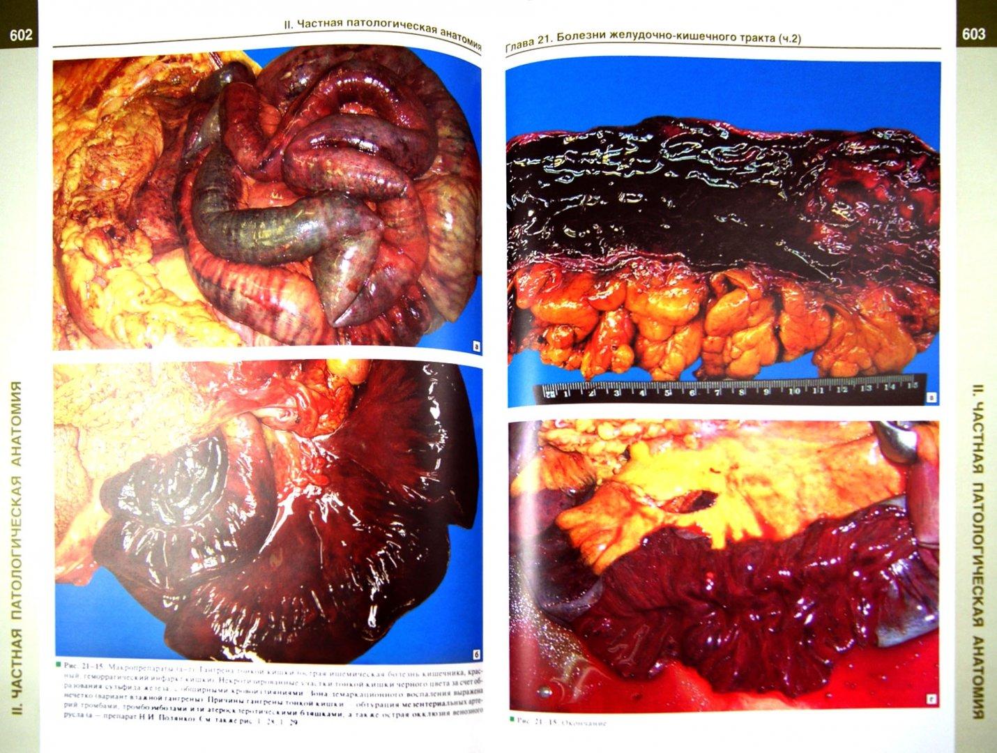 Иллюстрация 1 из 34 для Патологическая анатомия. Атлас. Учебное пособие - Зайратьянц, Бойкова, Зотова | Лабиринт - книги. Источник: Лабиринт