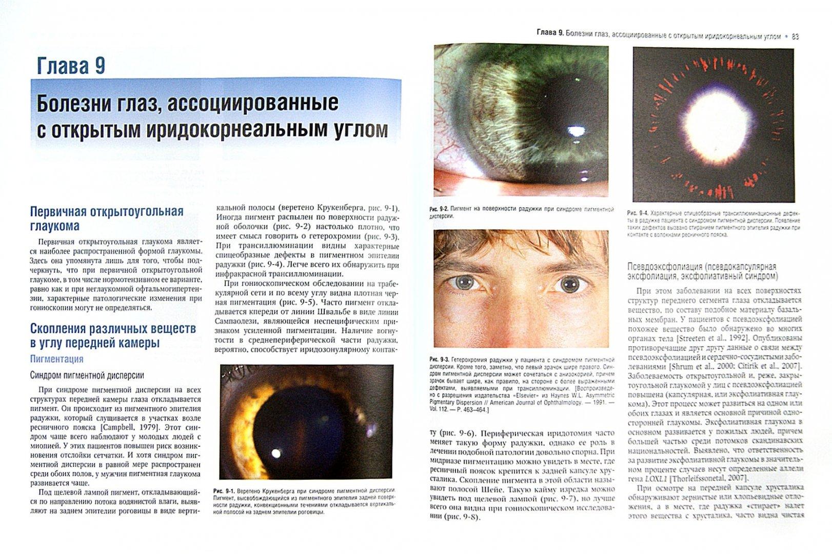 Иллюстрация 1 из 13 для Атлас по гониоскопии (+CD) - Олвэрд, Лонгмуа | Лабиринт - книги. Источник: Лабиринт