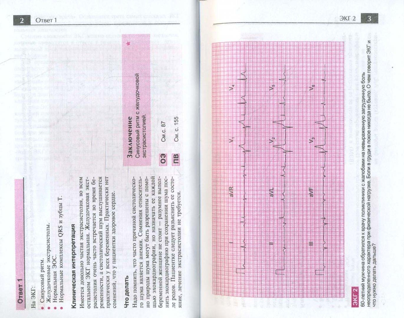 Иллюстрация 1 из 45 для Атлас ЭКГ. 150 клинических ситуаций - Джон Хэмптон | Лабиринт - книги. Источник: Лабиринт