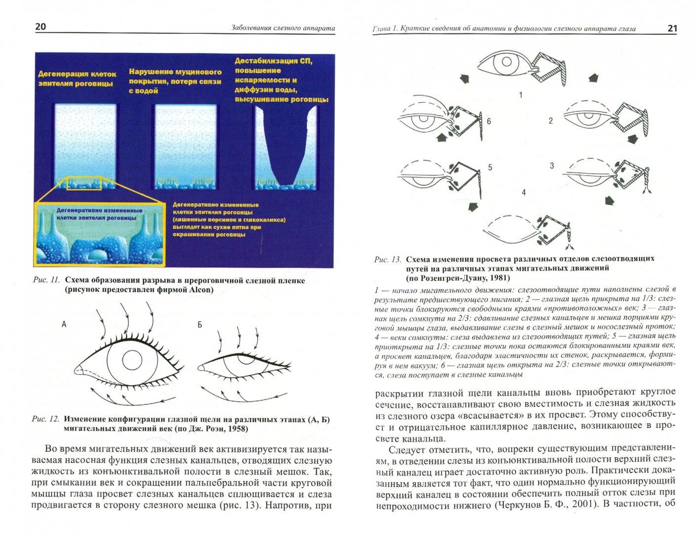 Иллюстрация 1 из 4 для Заболевания слезного аппарата. Пособие для практикующих врачей - Бржеский, Астахов, Кузнецова   Лабиринт - книги. Источник: Лабиринт